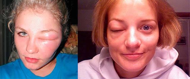 Аллергический отек лица: почему возникает, симптомы и лечение