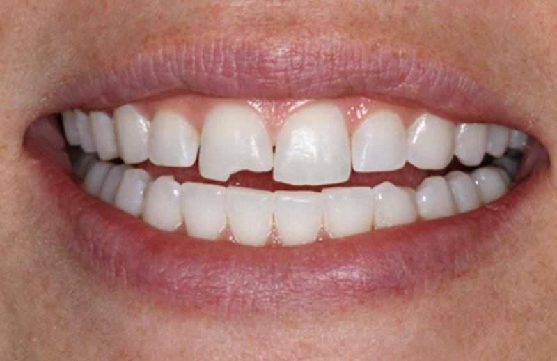 Крошатся и разрушаются зубы: причины, профилактика