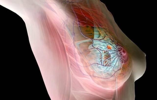 Фибромиома молочных желез: лечение, код по мкб-10