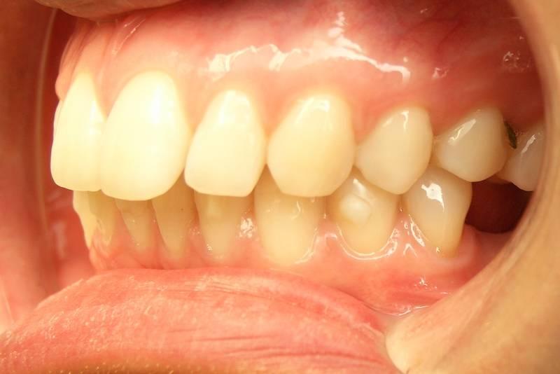 Сепарация зубов: исправление прикуса без потерь