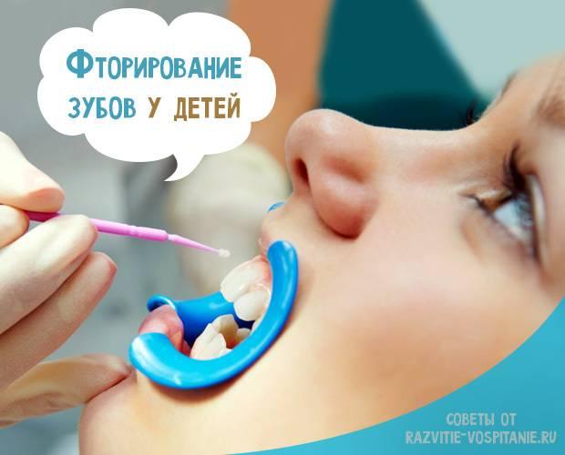 Как делают фторирование зубов у детей