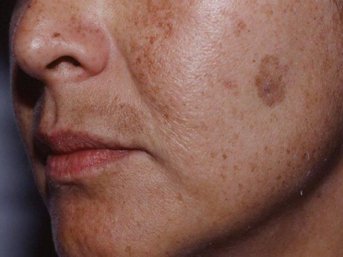 Пигментация – что это такое, как выглядят и почему появляются на лице, причины возникновения и лечение кожи