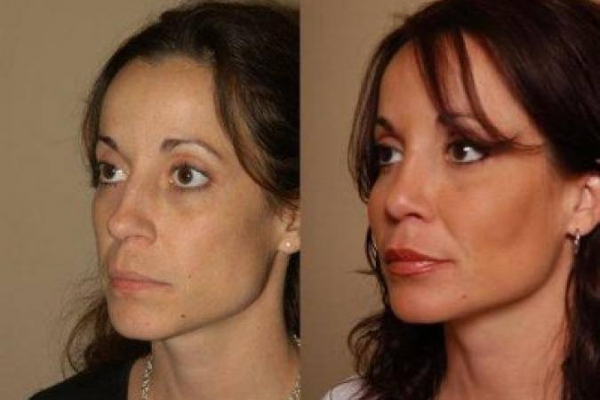 Липофилинг лица: опасна ли процедура и сколько длится эффект