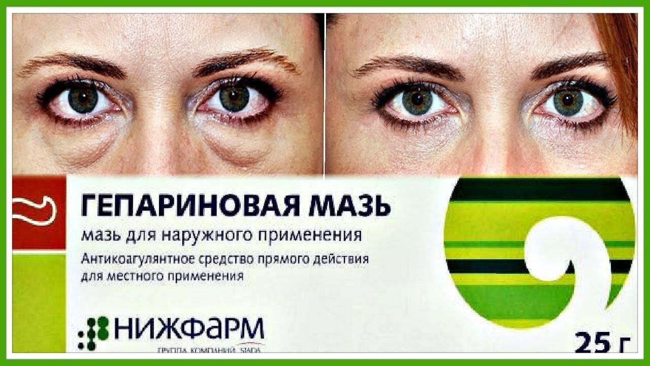 Можно ли использовать гепариновую мазь от синяков и мешков под глазами