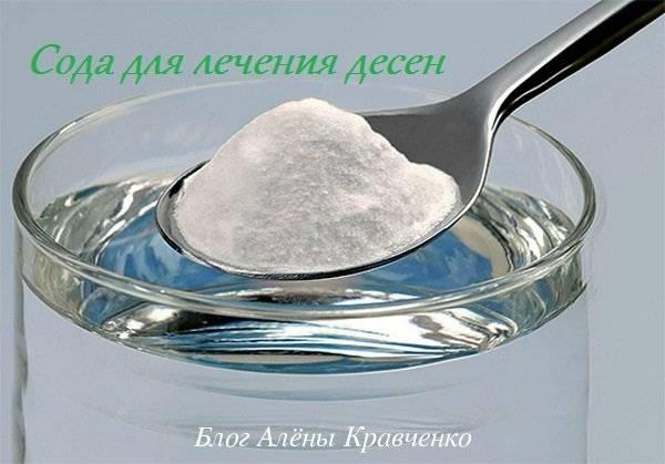 Сода от зубной боли: рецепты полосканий, советы, показания к применению