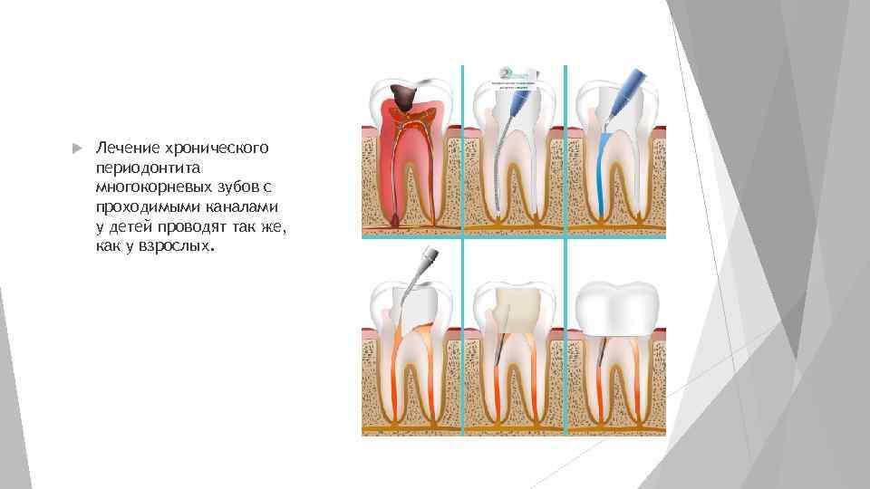 Периодонтит у детей: лечение молочных зубов