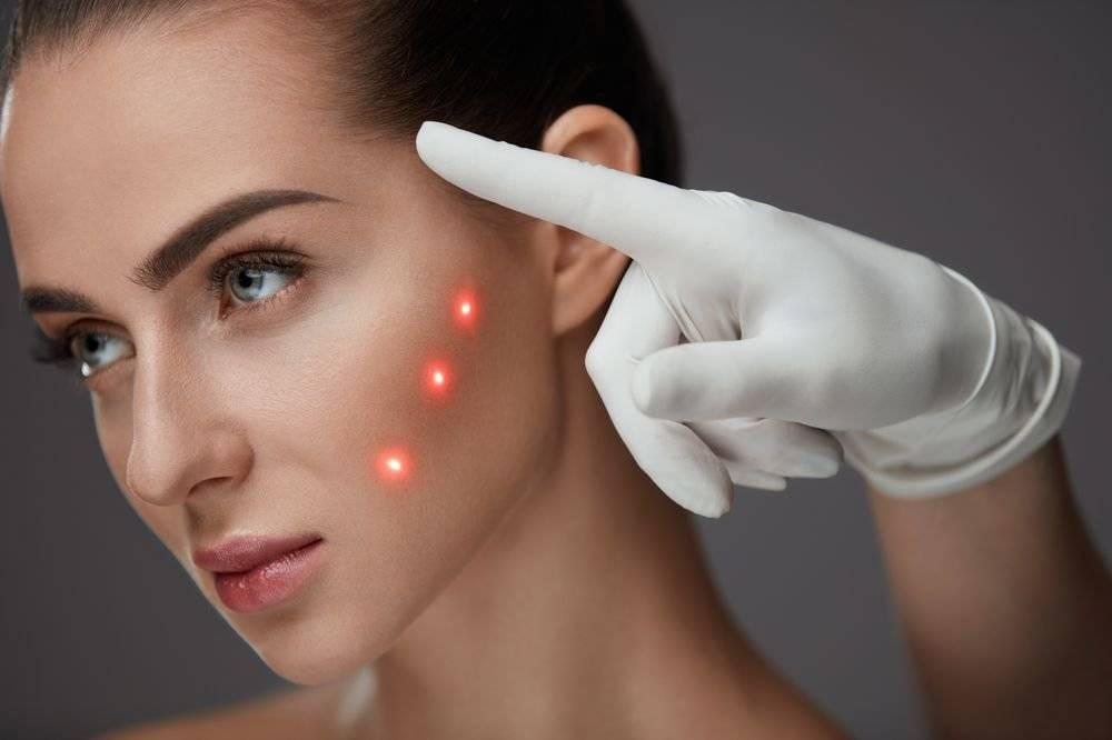 Вопрос: «как вы относитесь к процедуре plasma-lift?» выжигание дырок на лице и веках