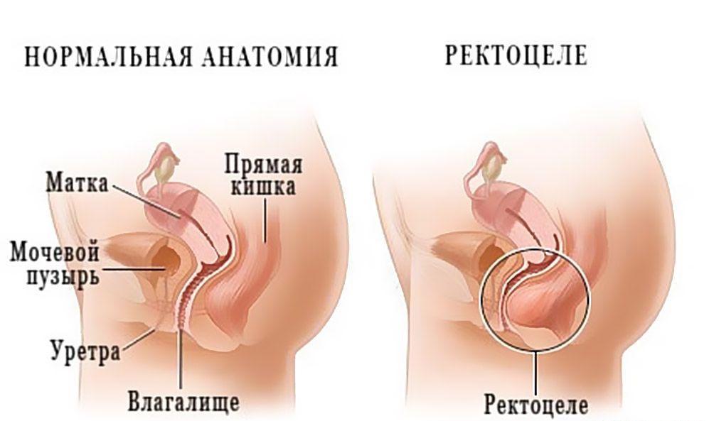 Каковы симптомы опущения матки и можно ли это вылечить?