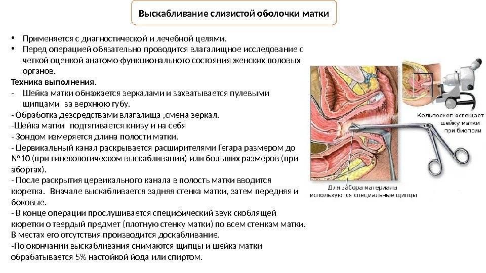 Как делают выскабливание при замершей беременности
