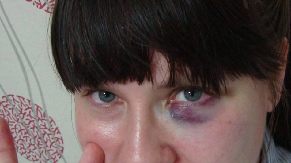 Как убрать гематому на лбу после удара и что делать чтобы быстро избавиться от синяка