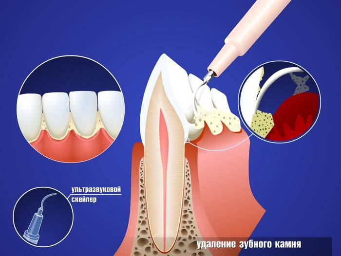 Как избавиться от зубного камня в домашних условиях: народные средства, щетки и пасты
