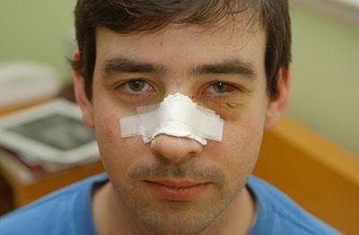 Репозиция костей носа после перелома