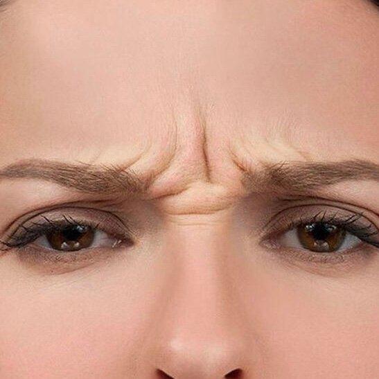 Как убрать морщины на переносице и между бровями – ботокс и другие способы. фото и отзывы специалистов