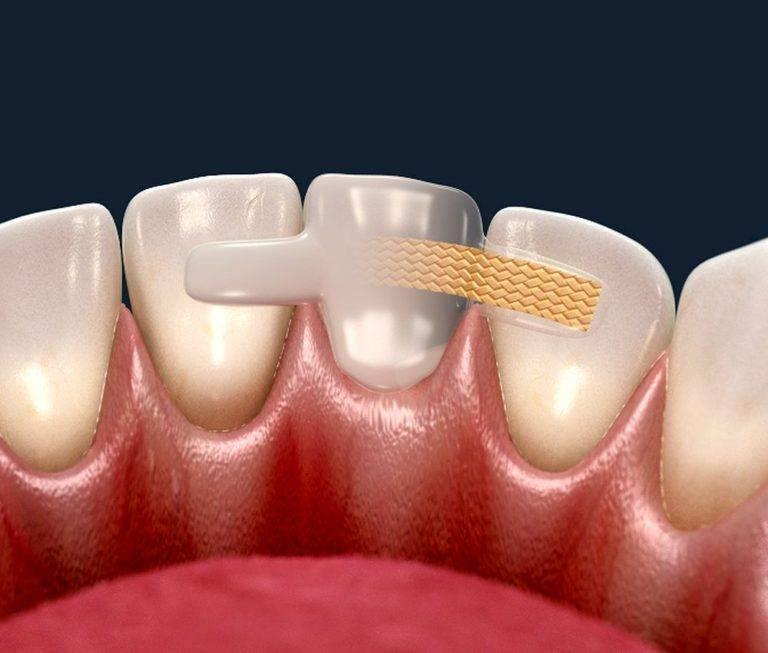 Что такое шинирование зубов при пародонтите и пародонтозе, показания к процедуре