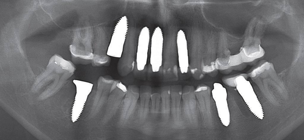 Новости и статьи по метке «зубы»