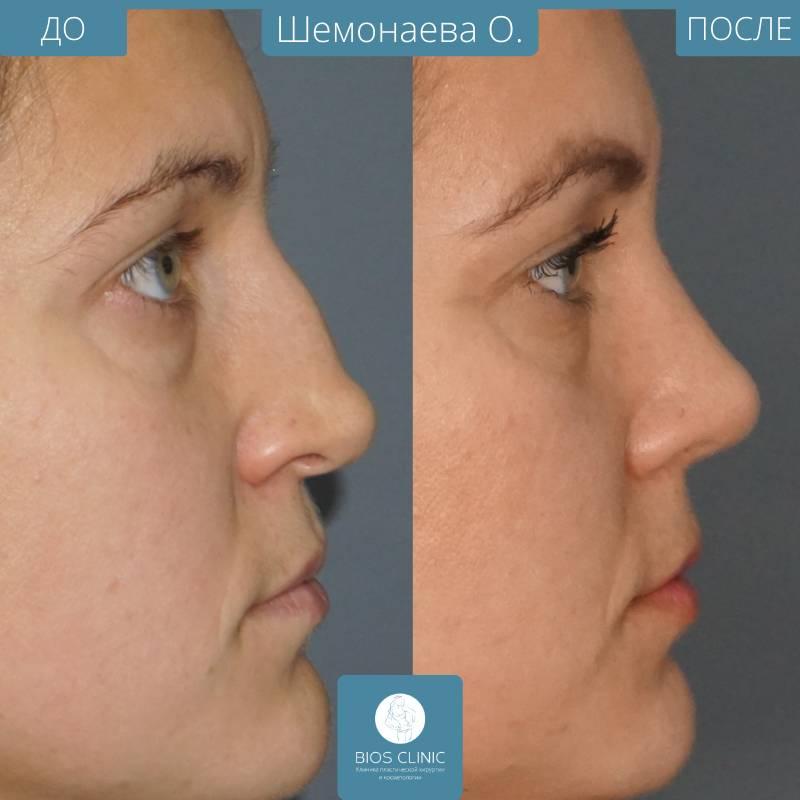 Искривленная носовая перегородка – лечение без операции, если искривлена