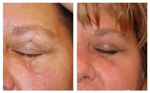 Лечение шрамов и рубцов от ожога на коже лица мазями и кремами