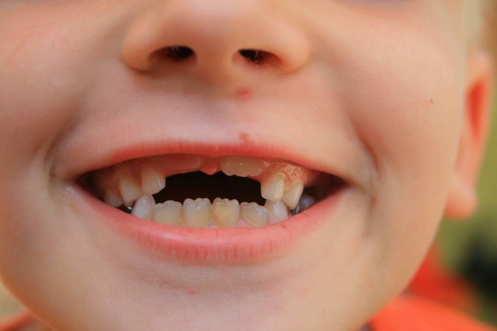 Прорезался первый зуб у ребенка