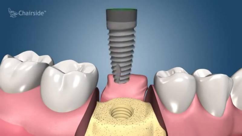 Безоперационная имплантация зубов: установка имплантов без разреза десны