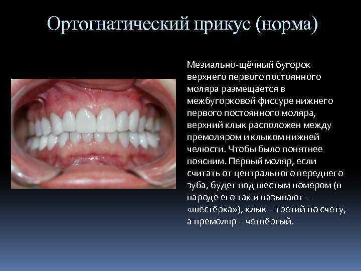 Лекция 2 дистальный прикус. этиология, патогенез, клиника, диагностика, профилактика и лечение. - презентация