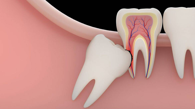 Поднимается десна над зубом: причины, лечение, фото