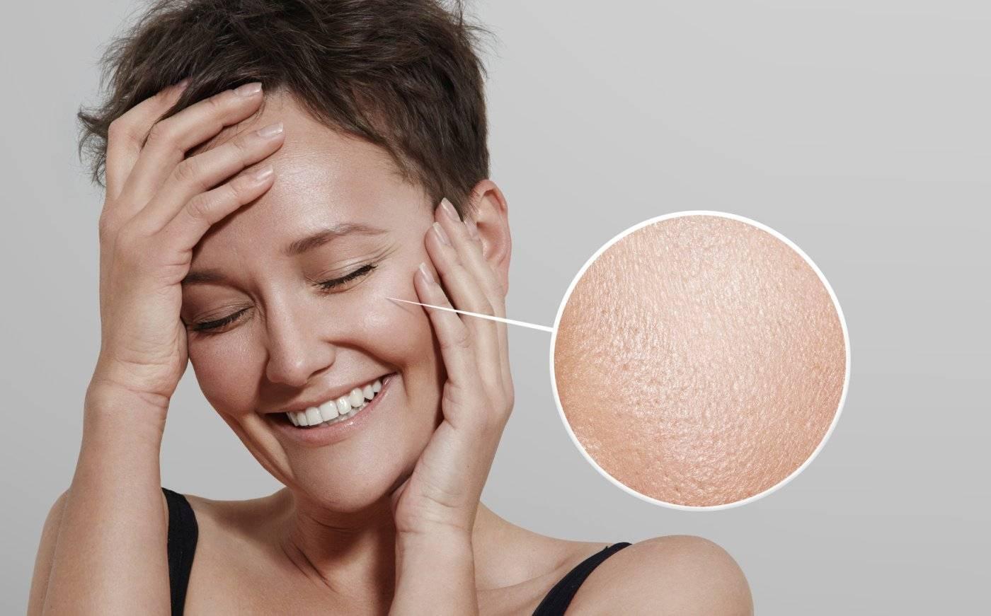 Типы кожи лица и особенности ухода за ними