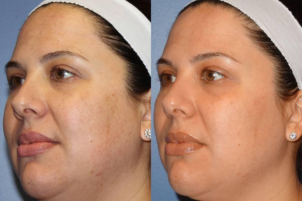 Что такое дермабразия лица — обзор процедуры