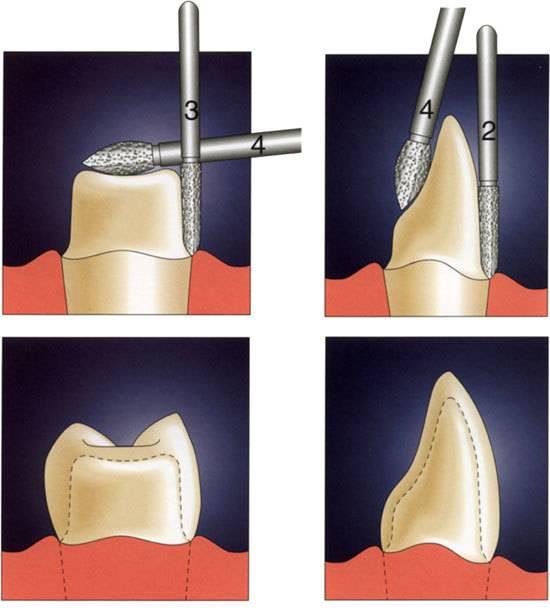 Особенности иннервация временных и постоянных зубов