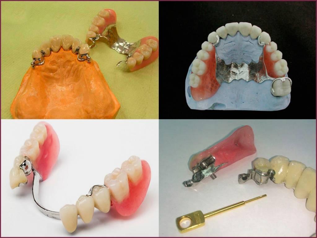 Клинические и технологические ошибки при изготовлении съемных зубных протезов