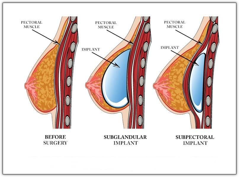 Когда снимают швы после операции на груди и как за ними ухаживать