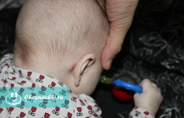 Околоушные лимфоузлы: нормальные размеры, причины воспаления, симптомы и способы лечения