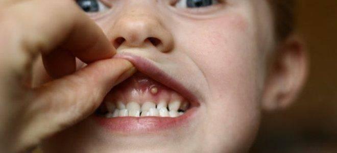 Шишка на десне у ребенка: причины и лечение