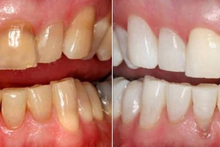 Через сколько можно курить после чистки зубов