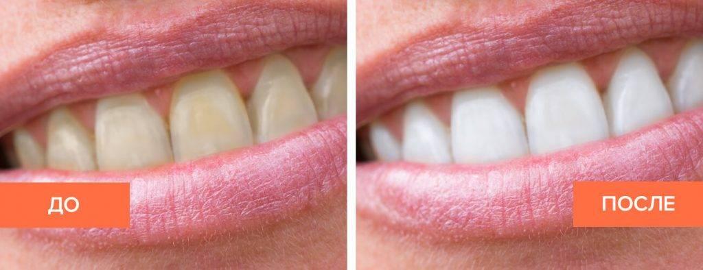 Всегда ли можно вернуть белизну? показания и противопоказания к отбеливанию зубов