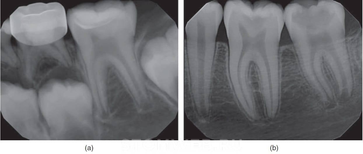 Лечение периодонтита постоянных зубов с несформированными корнями у детей