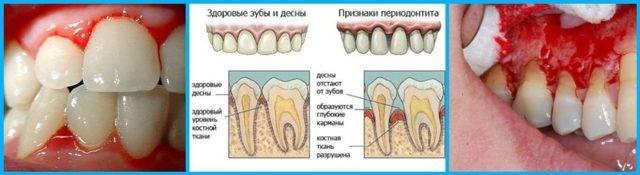 Почему болят зубы при простуде и что делать