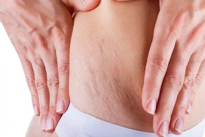 Почему появляются растяжки после похудения