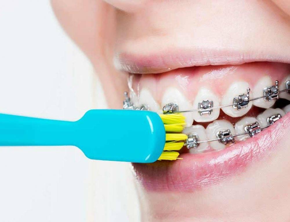 Уход за зубами и брекетами после установки