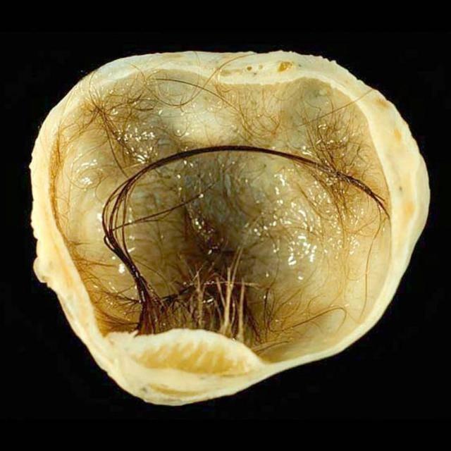 Тератома яичника, что это такое?