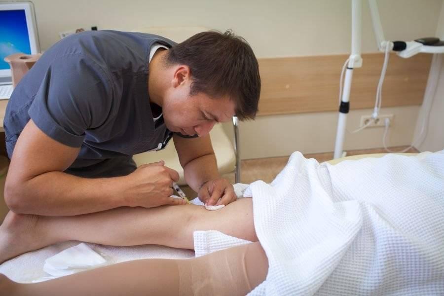Восстановление после склеротерапии