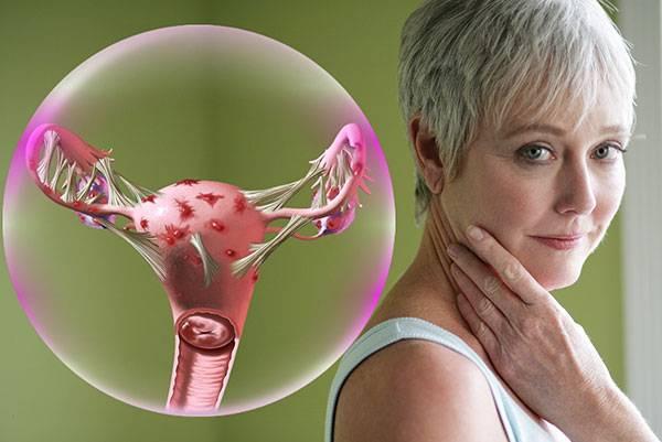 Как лечат эндометриоз у женщин после 40 лет?