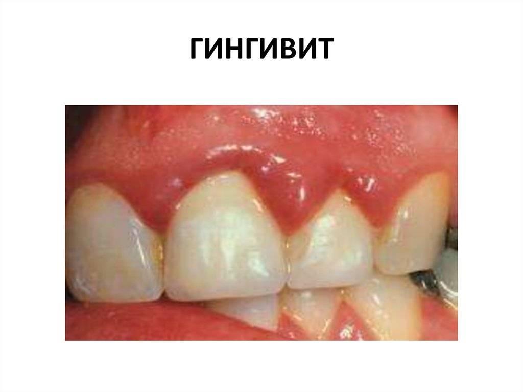 Гипертрофический гингивит (фиброзная форма)