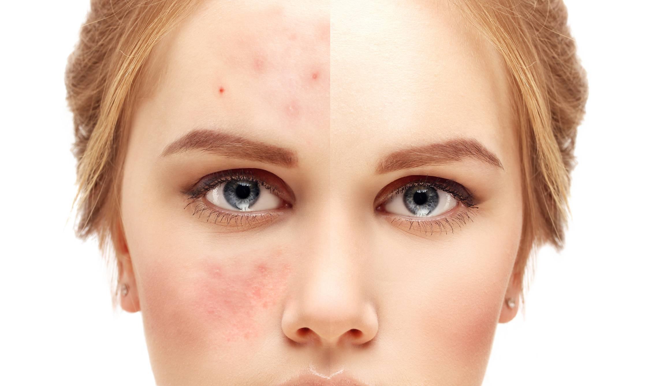 Что делать если кожа на лице жирная и постоянно появляются прыщи