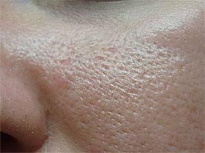 Часть1: уход за кожей с расширенными порами