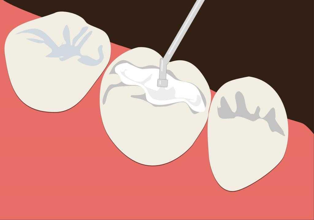 Болит зуб, но кариеса нет: в чем причина?