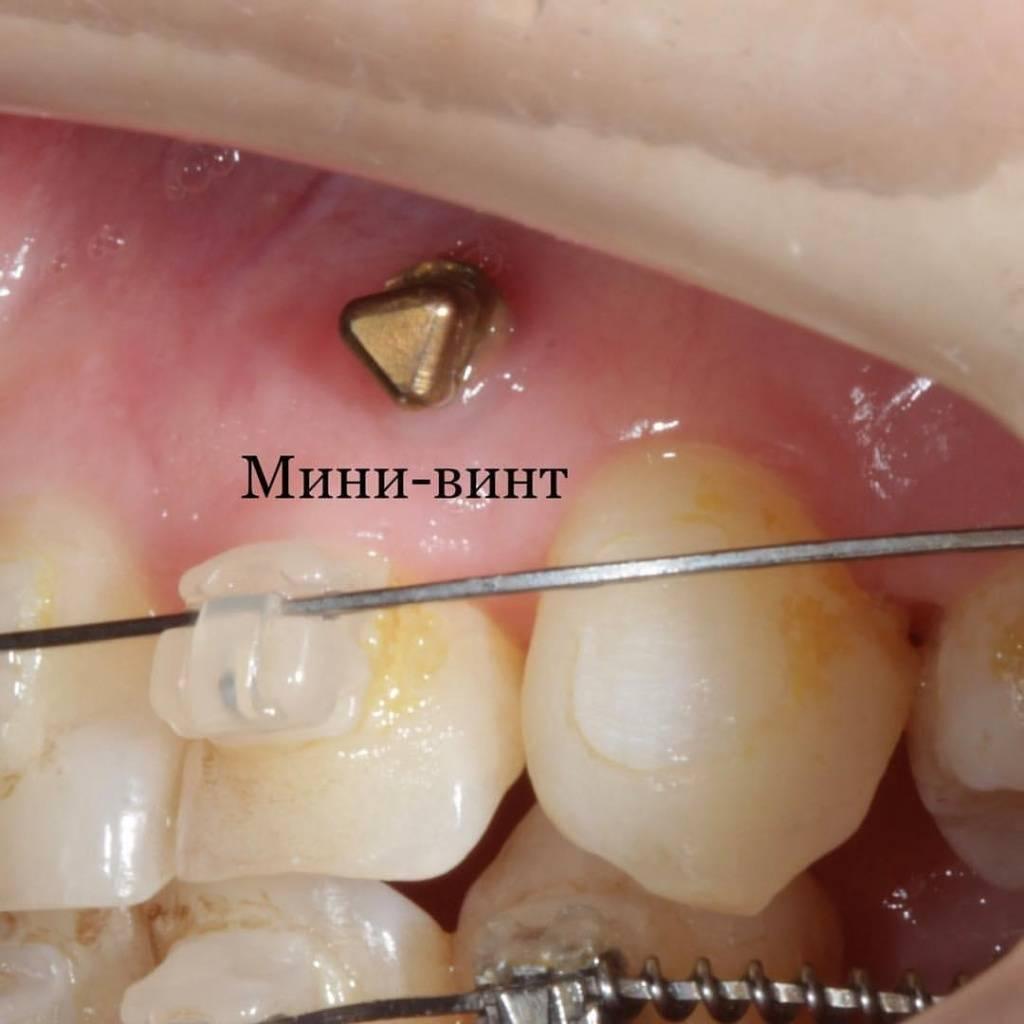 Ортодонтические мини-импланты: преимущества и недостатки