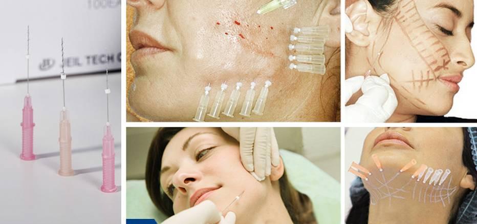 Преимущества безинъекционной биоревитализации лица перед другими омолаживающими процедурами