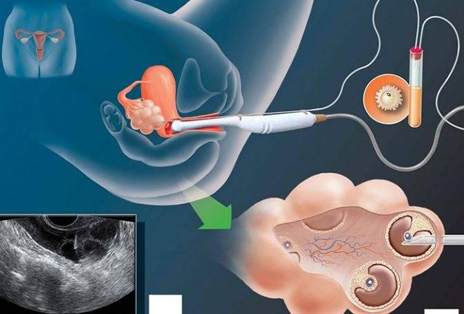 Проведение пункции яичников при эко
