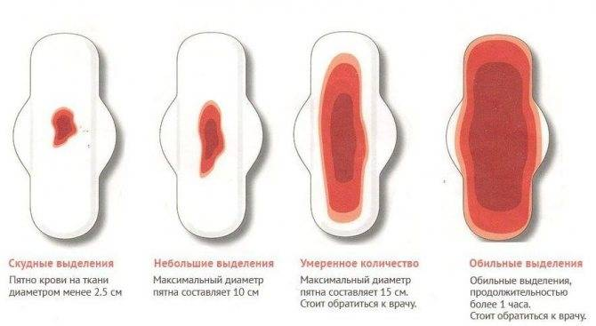 Розовые выделения при беременности на ранних и поздних сроках