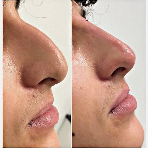 Что такое безоперационная ринопластика носа и какие есть виды?
